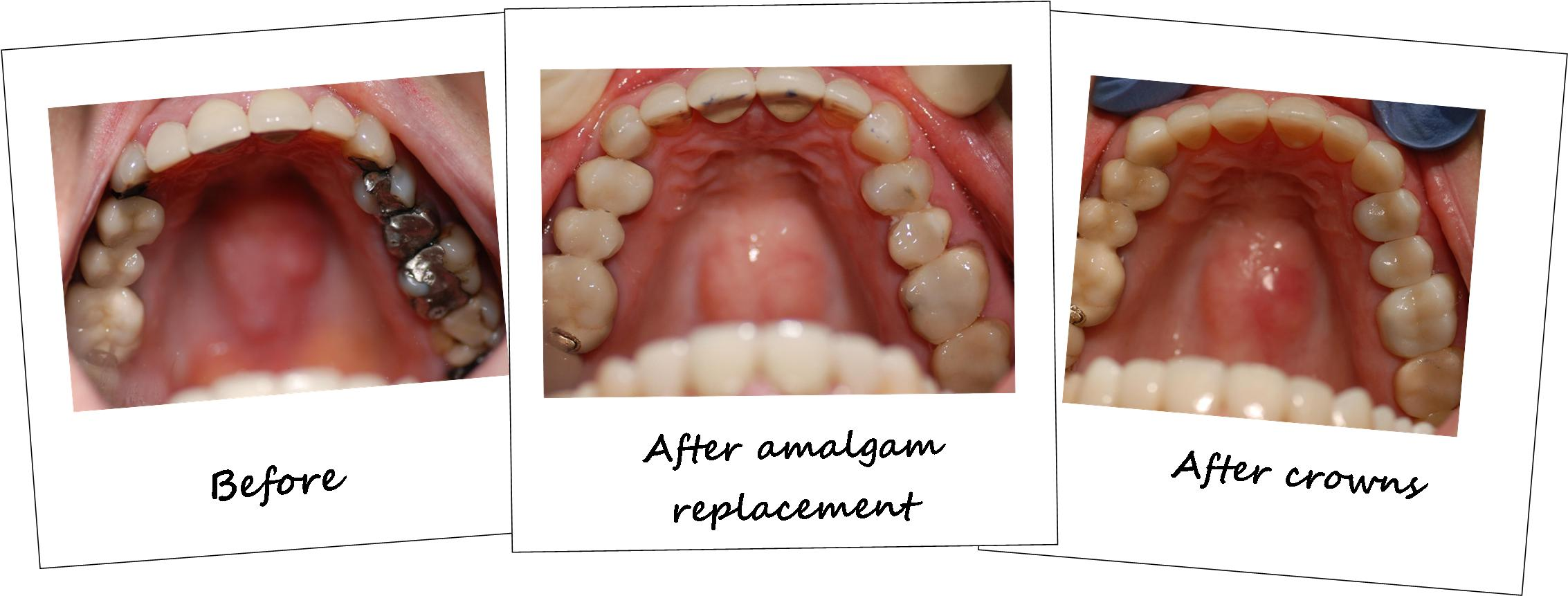 amalgam-replacement-crowns