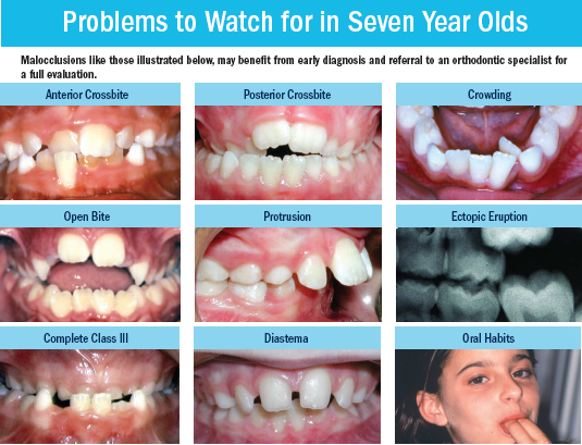 child-orthodontic-issues