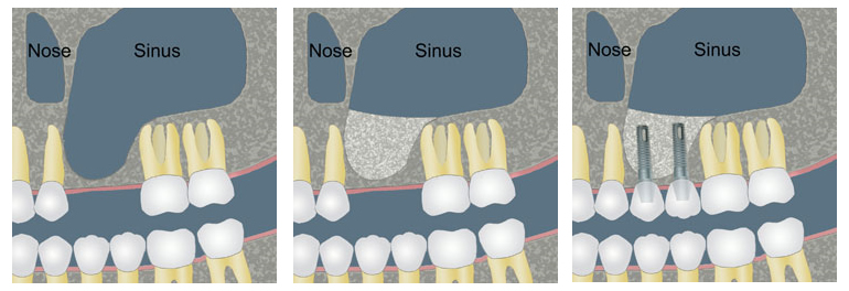 sinus-lift