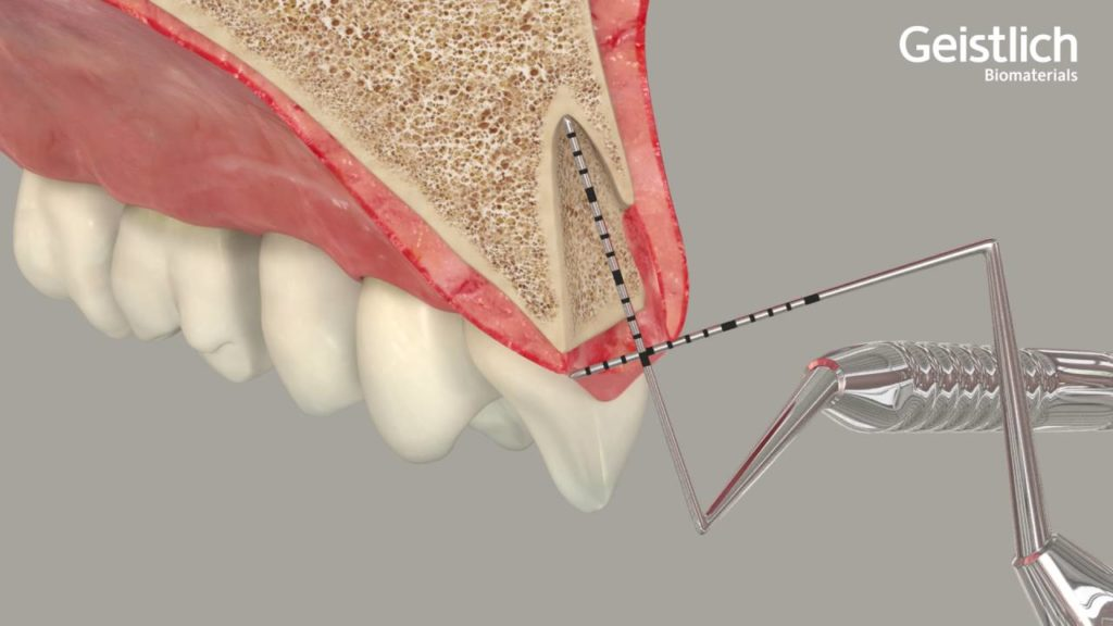Socket Preservation Bone Graft Tooth Extraction